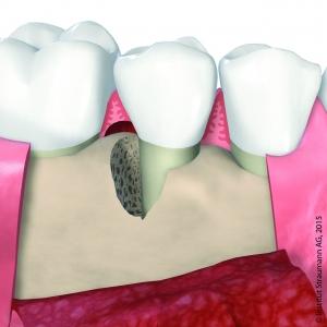 parodontaler Knochendefekt